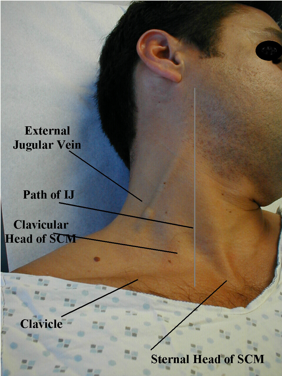Surface CVP Anatomy